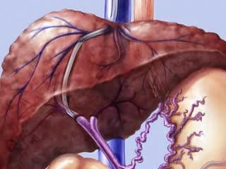 Диагностика портальной гипертензии