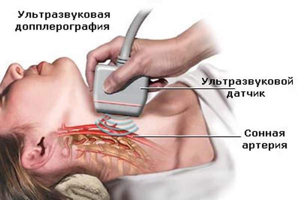 УЗДГ Брахиоцефальных артерий сосудов