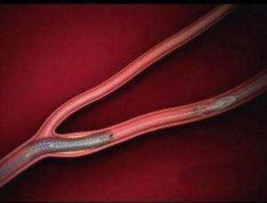 УЗДГ Транскраниальных артерий сосудов