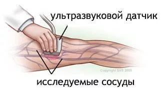 УЗДГ Артерий нижних конечностей