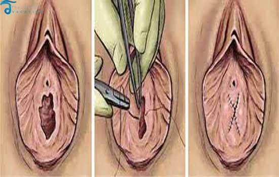 Гименопластика - Восстановление девственности