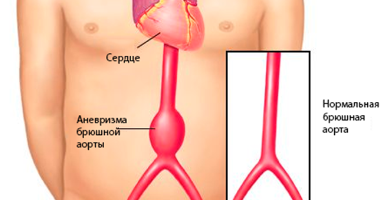 Аневризма брюшного отдела аорты