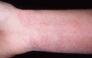 Атопический дерматит - причины