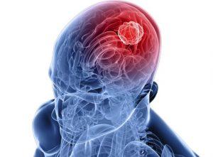 Что такое энцефалит? Чем он опасен и как лечится?