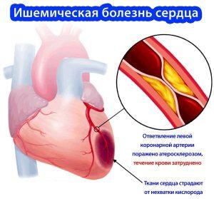 Ишемическая болезнь сердца