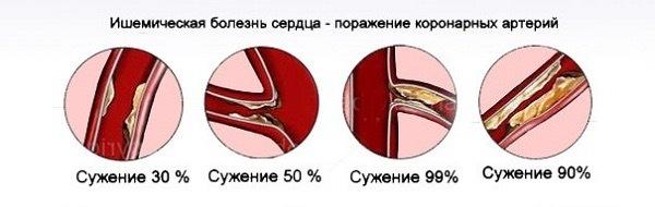 Ишемической болезнью сердца и гипертонией