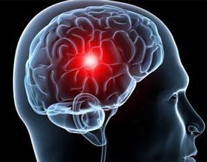Каковы основные симптомы ишемии головного мозга?