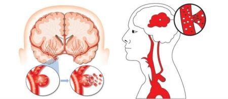 Кровоизлияния в мозг