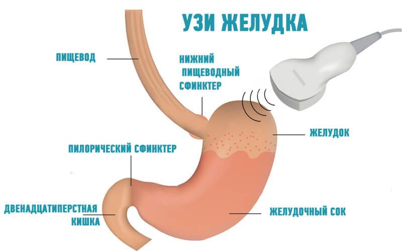 Надо ли пить перед узи брюшной полости