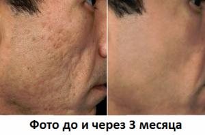 Шлифовка лица