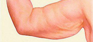Удаление дряблости кожи