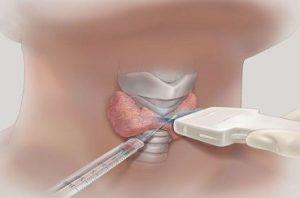 Трепан-биопсия мягких тканей под контролем УЗИ с гистологическим исследованием в Шали