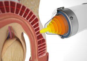 Ударно-волновая терапия (УВТ) при болезни Пейрони в Кизляре