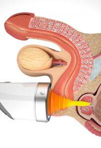 Ударно-волновая терапия (УВТ) при простатите в Нарткале